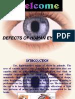 199579792-Defects-in-Human-Eye