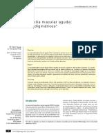 Neurorretinopatia macular aguda.pdf