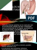 Calculos biliares exposicion.pptx