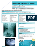 COLOCACION_ENDOSCOPICA_CATETER_DOBLE-J.pdf