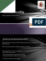 tenosinovitis-131106183336-phpapp01.pptx