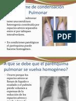 Síndrome de condensación pulmonar.ppt