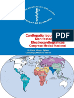 Cardiopatia Isquemica y sus Manifestaciones Electrocardiograficas. CMN 2014