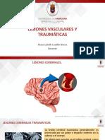 LESIONES VASCULARES, TRAUMATICAS E INFECCIOSAS
