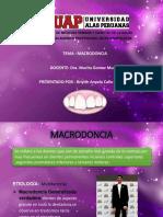 MACRODONCIA.pptx