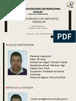 RESTAURACIÃ_N CON IMPLANTES