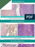 ddx neuroblastoma