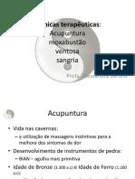 acupntura natural