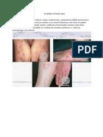 147324881-Eczema-Numulara.docx