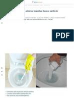5 truques práticos para eliminar manchas do vaso sanitário rapidamente