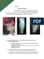 caso 4-fracturas.docx
