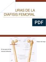 fracturasdeladifisisfemoral-110411082541-phpapp02