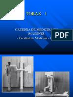 Torax 1.pptx