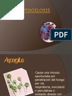 1 aspergilosis