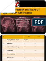 Basic-Interpretation-of-MRI-and-CT-Scan-in-Brain-Tumor-Cases