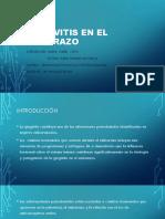 GINGIVITIS-EN-EL-EMBARAZO.pptx