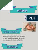 suturass 2 (1)(1)