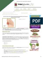 Hiperuricemia y Gota_ Tratamiento Natural _ VidaNaturalia.pdf