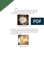 Klassifikasi Dermatofitosis