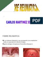 2. FIEBRE REUMATICA