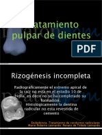 Apicogenesis-por-caries
