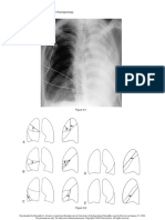 Felson's Ch 8 signs of lung and lobar collaps
