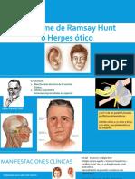 Síndrome de RAMSAY HUNT.pptx