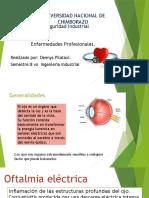 oftalmia electrica.pptx