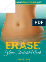 ⓍⒽⒺⒶⓁ+»+Erase+Your+Stretch+Marks+PDF_eBook,+Justin+E.+King