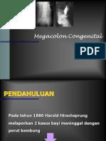 MEGACOLON KONGENITAL