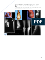 Tumorile osoase generalitati tumori benigne prof Univ Dr Mihai V Popescu