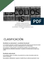 Caso Clínico Escoliosis lumbar