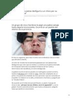 clarin.com-Mendoza Una patota desfiguró a un chico por su tonada chilena.pdf