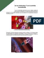El_papel_de_los_linfocitos_ T_en_ la_artritis_reumatoide