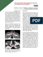 Surgery for congenital nasal pyriform aperture stenosis _CNPAS_.pdf