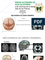 mecanismosdelesincerebralalex