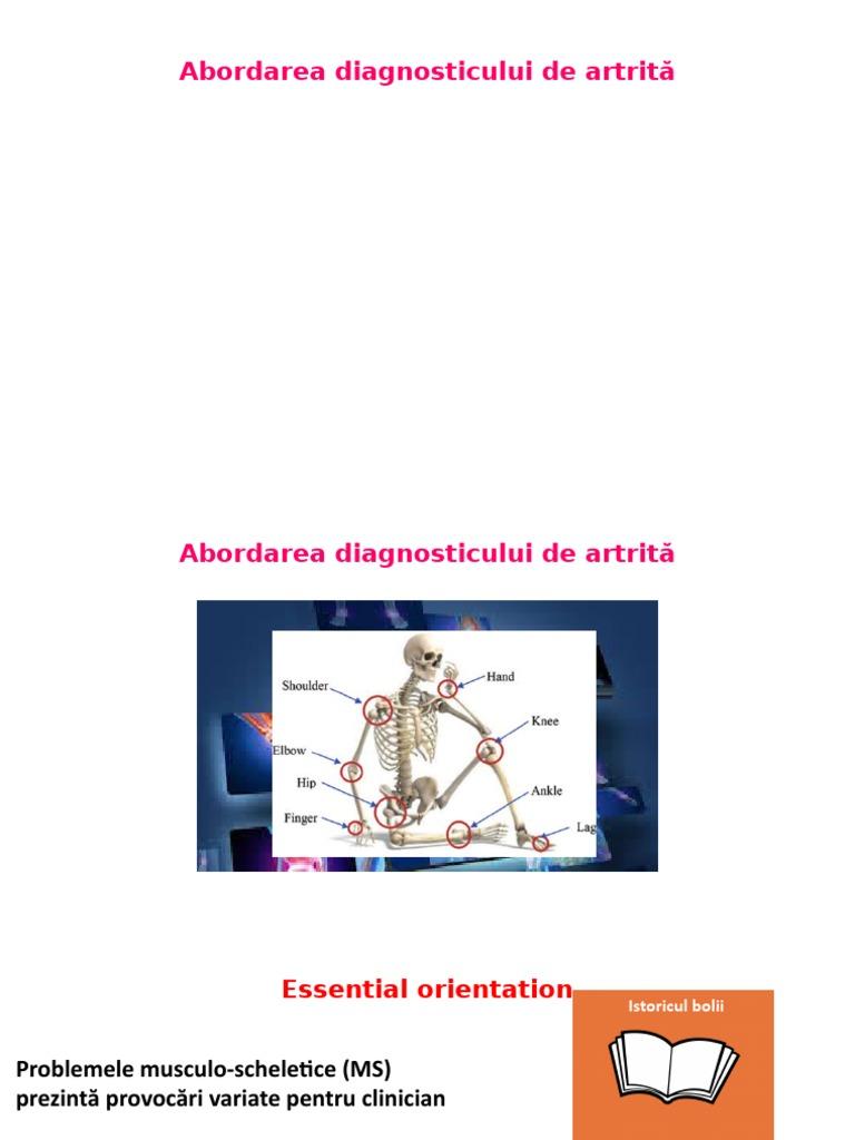 diagnostic de artrită articulară)