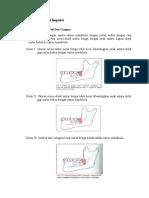 Klasifikasi Umum Gigi Impaksi