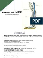 caso clinico TVP