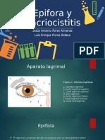 Epifora y Dacriocistitis