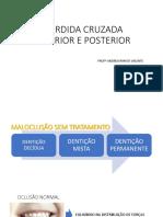 roteiro mordida cruzada.pdf