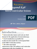 Intraventricular lesions by endoscopy