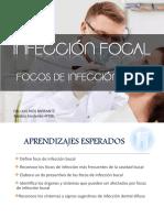 INFECCION FOCAL (usmp2016)