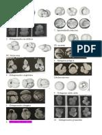 foraminifera neogen.docx