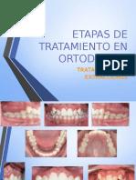 ETAPAS DE TRATAMIENTO EN ORTODONCIA.pptx