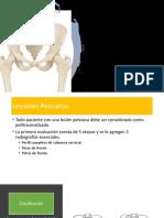 Fracturas de cadera y pelvis.pptx