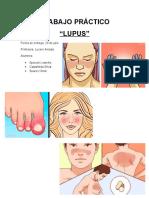 lupus biologia