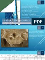 Cicatrización alveolar