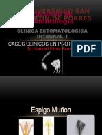 ESPIGO MUÑON.pptx