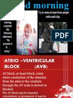 Heart Block Ppt